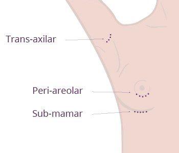 info-pacienta-incizii implanturi